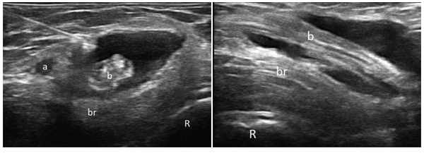 Figure 1: Transverse 18 MHz ultrasound image over the right antecubital fossa at a level distal to the joint line. The left side of the image is medial, and the right side is lateral (R: radius, br: brachialis muscle, a: brachial artery, b: biceps tendon). & Figure 1 (left): Transverse 18 MHz ultrasound image over the right antecubital fossa at a level distal to the joint line. The left side of the image is medial, and the right side is lateral (R: radius, br: brachialis muscle, a: brachial artery, b: biceps tendon).