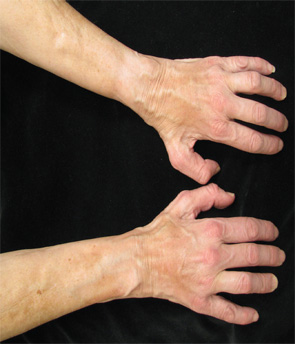 Figures 1 & 2: On exam, the patient had thickening of the skin on her extremities.