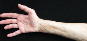 Eosinophilic Fasciitis Archives The Rheumatologist