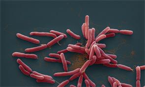 Burkholderia pseudomallei bacteria on a color-enhanced scanning electron micrograph (SEM).