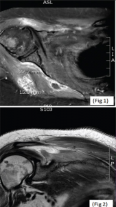 MRIs of the right shoulder showing a collection within the right axilla (Fig. 1, top) and hyperintense signals from the head of the right humerus (Fig. 2).