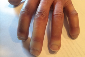 Acroosteolysis of the hands in a patient with scleroderma.
