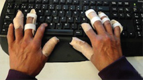 Adaptive equipment fosters functional independence in activities of daily living: Finger splints facilitate use of a computer keyboard.