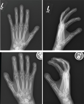 P/A and lateral X-ray views of acroosteolysis in both hands.