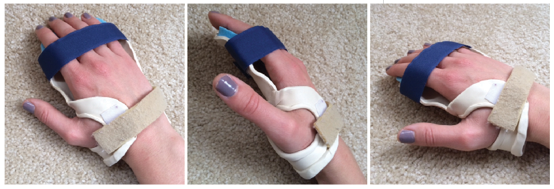 Resting splints for the wrist and fingers used to prevent contractures.