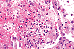 Figure 2: Eosinophilic infiltration in a lung biopsy of acute eosinophilic pneumonia.