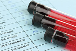 Although HIV testing may seem outside our scope of practice as rheumatologists, it's important to consider incorporating it into your screening procedures, along with tests for hepatitis B and C.