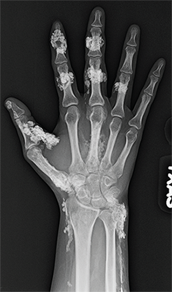 Figure 2: Anteroposterior radiograph of the right hand.