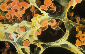 Red blood cells in the alveoli of a human lung on a scanning electron micrograph.