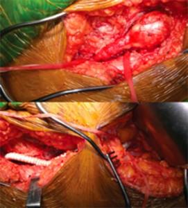 Intraoperative images showing femoral artery aneurysm (top) and Dacron graft after resection (bottom).