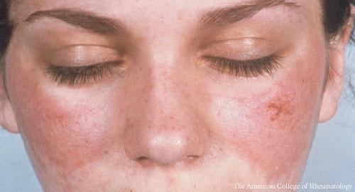 Critieria, Pathogenesis Highlight New Lupus Efforts - The Rheumatologist