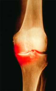 Colored X-ray of the knee of a patient with OA. Patients who test positive for anti-citrullinated protein antibodies show signs of bone erosion before they have clinical signs of arthritis.
