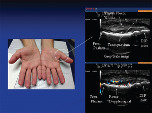 Image 1: The photo (left) reveals subtle soft tissue swelling of the proximal portion of left thumb (arrow) corresponding to teno-synovial hypertrophy seen on this longitudinal gray-scale image of the proximal portion of the thumb. Doppler ultrasound of the same area (right): Power Doppler signals indicate inflammatory (high vascularity) signal of the surrounding tenosynovium deep to the flexor tendons reflective of tenosynovitis.
