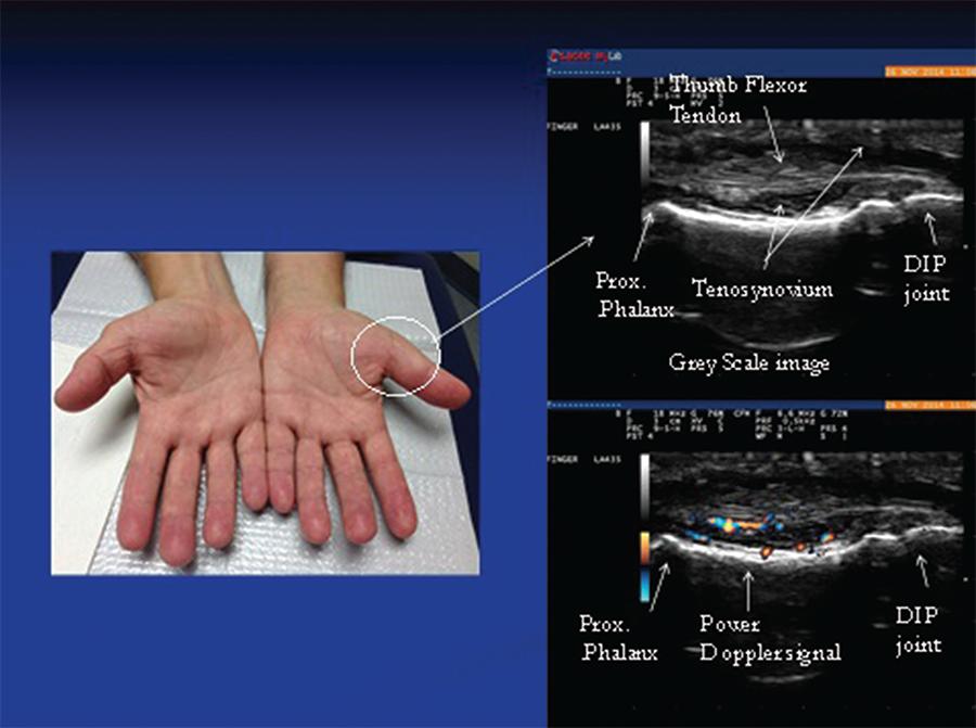 Musculoskeletal Ultrasound A Valuable Tool For Diagnosing Rheumatic Illnesses The Rheumatologist