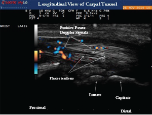 Image 4: Longitudinal view of the carpal tunnel demonstrating the positive power Doppler signals between the flexor tendons.