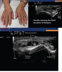 Image 8: Right wrist swelling (left) with focal fusiform swelling over the dorsum of the wrist. To the right, you see the needle entering the tenosynovial fluid (in-plane technique). Bottom: The longitudinal view along the course of extensor pollicis longus taken just proximal to Lister's tubercle, demonstrating compressible fluid (anechoic or dark area), without tenosynovial hypertrophy. Fluid was aspirated using ultrasound guidance, which demonstrated inflammatory fluid (leukocytes=5545/High Power Field) with calcium pyrophosphate crystals on microscopic exam.