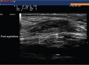 Image 10: This image was taken after aspiration of the fluid from the cyst.