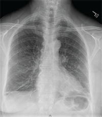Image 1: The chest X-ray was remarkable for apical scarring, basilar atelectasis and/or scarring, bronchiectasis in the lingula and absence of lymphadenopathy.