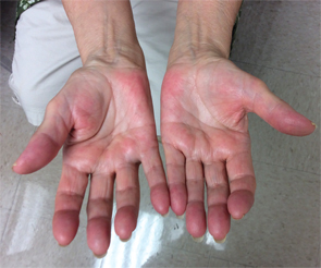 Figure 1A (left) & Figure 1B: These images show the patient's hands on initial presentation to the rheumatologist, with visible flexion contractures of all digits and swelling, erythema and pain on palpation.