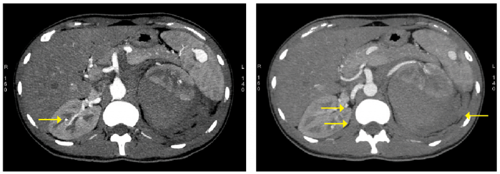 Figure 1: A splenic, right renal aneurysm with left para-renal hemorrhage is shown in the CT.