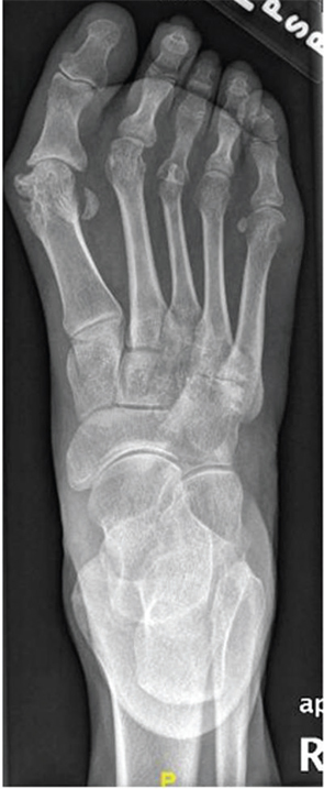 Figure 2: AP radiograph of the right foot.