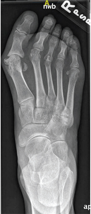Figure 1: Anteroposterior (AP) radiograph of the left foot.