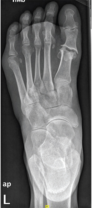 Figure 2: AP radiograph of the left foot.