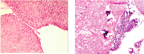 Figure 3 (left): Low-power view with extensive myxomatous and chondroid areas with condensation of the stromal cells (H&E). Figure 4 (right): Low-power view with bone marrow surrounding extensive myxomatous and chondroid areas with condensation of the stromal cells (H&E).