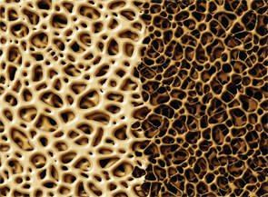 Bone with osteoporosis: Strong, healthy, normal spongy tissue (left) contrasted with unhealthy, porous weak structure due to aging or illness.