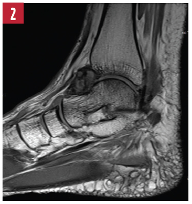 T1-weighted image of the left ankle.