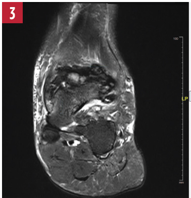 T2-weighted image of the left ankle.