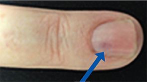 Figure 2: The nail bed shows some discoloration.