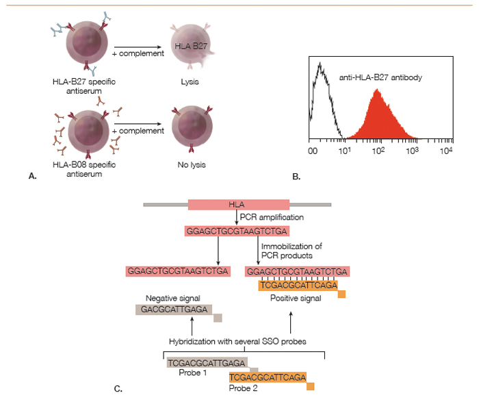 how hla-b27 research landmarks, advances relate to ankylosing, Skeleton