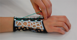 Dr. Paterson's lab is reimagining wrist splints for patients with rheumatoid arthritis.