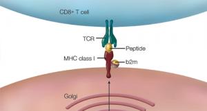 How HLA-B27 Research Landmarks, Advances Relate to Ankylosing Spondylitis Pathogenesis