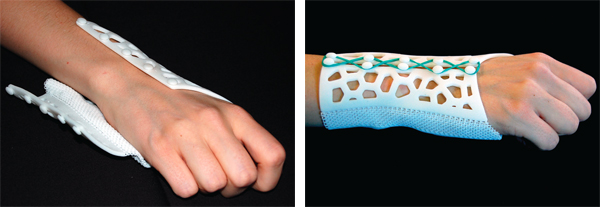 This additive, manufactured textile splint could be a boon for older patients and others with sensitive skin. Part of the mesh splint is printed textile that serves as an easily opened hinge.