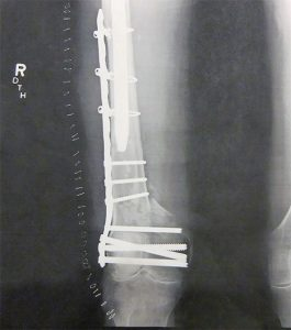 Post-op X-ray shows the repair of the author's right femur fracture.