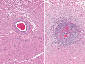 Severe inflammation of the artery (arteritis) (right) in the myocardium. For comparison, a normal healthy artery is shown on the left.