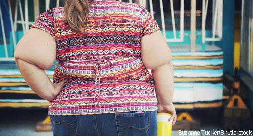 suzannetucker_shutterstock_obesity_500x270