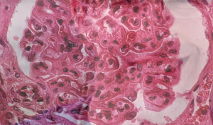 The pattern of lupus glomerular involvement in this patient with lupus nephritis is similar to that in membranous nephropathy, forming wire-loops lesions.