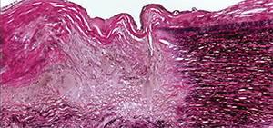 This photomicrograph of the aorta shows transmural destruction on the left side of the specimen with an inflammatory process containing multinucleated giant cells and loss of elastic fibers (Verhoeff-van Gieson stain).