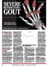 Pharmacokinetics May Be Factor in Success of Pegloticase Therapy for Gout