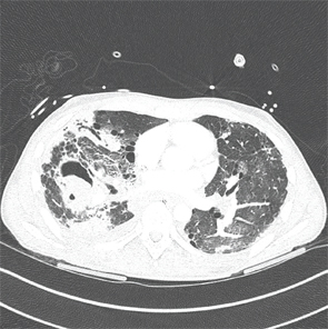 An axial CT view demonstrating a mycetoma in the right middle lobe.