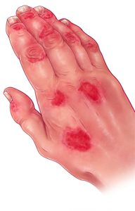 This illustrates a patient with psoriasis accompanied by arthritis and other joint problems. Aside from the appearance of red skin lesions and joint inflammation, changes in fingernails and dactylitis (swelling of fingers that create a sausage-like appearance) are characteristic of psoriatic arthritis.