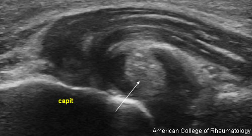 acrgout_ultrasound_500x270