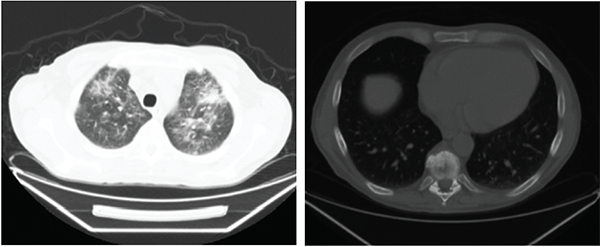 Figures 1A (left) & B (right): Patient 1