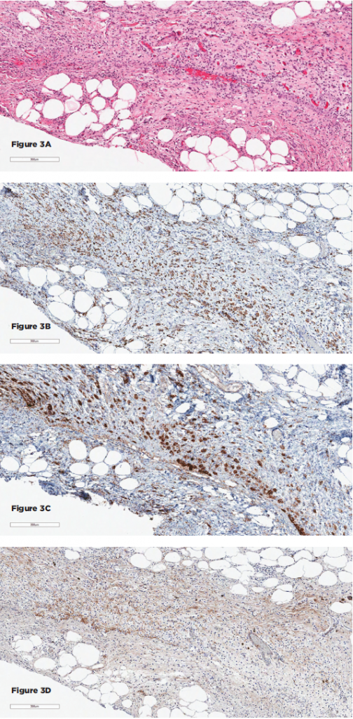 Figures 3A–D show the histopathologic findings for Patient 2. 3A–D show sections of the retroperitoneal lesion showing a fibrohistocytic lesion with foamy histiocytes on H&E (3A), positive for CD68 (3B) and BRAF (3C), negative for S100 and CD1a (not shown), and with only rare IgG4+ plasma cells (3D).