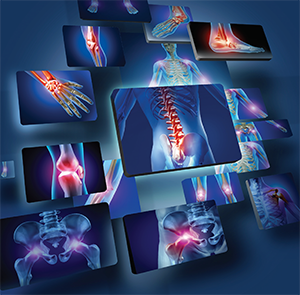 No single specialty focuses on bone health, and yet bone health in general, and osteoporosis in particular, are among the most common reasons patients are seen in rheumatology practices.