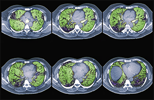 Colored CT scans of axial sections through the chest of a 68-year-old patient with ILD.