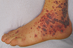 Petechia/purpura on the low limb due to medication induced vasculitis.